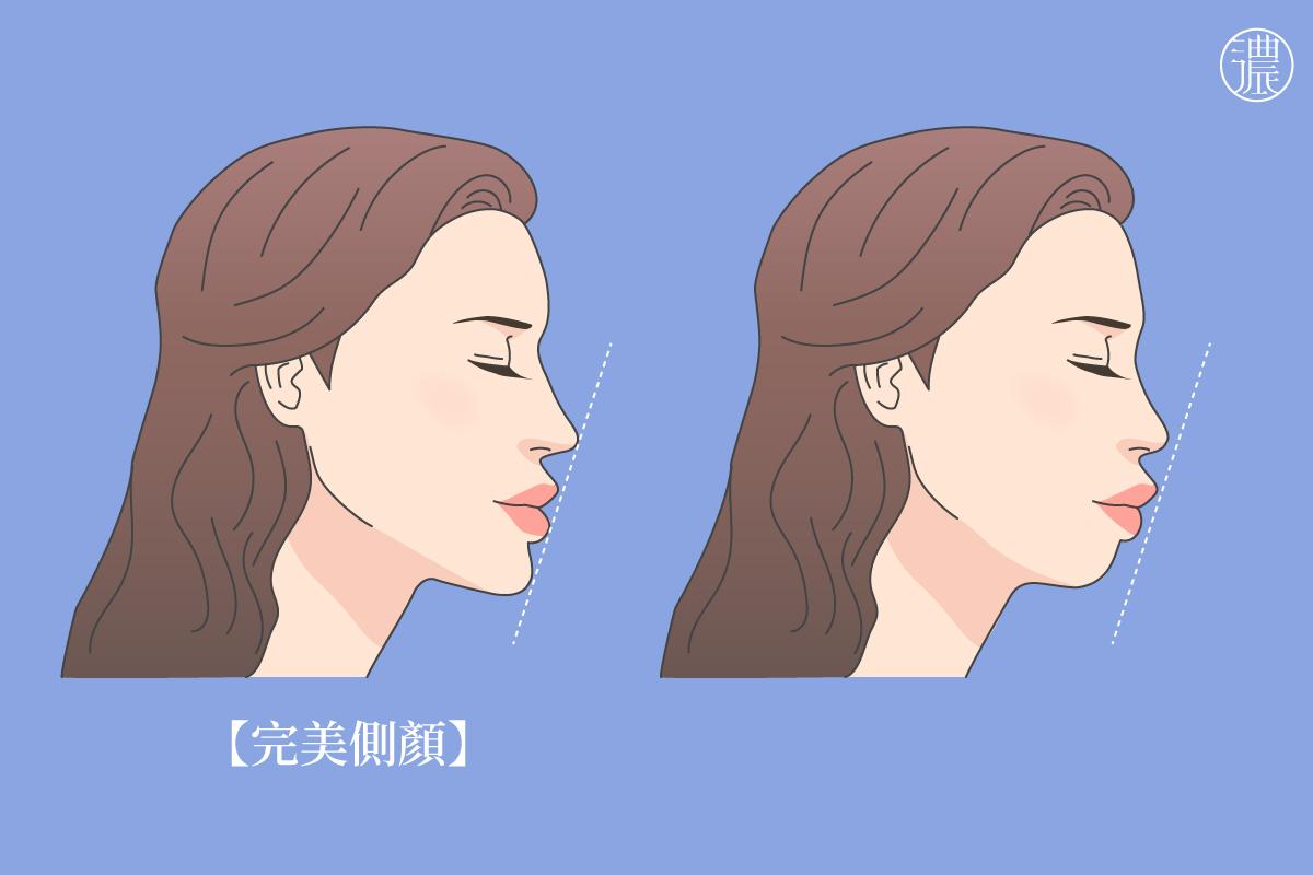 可立美玻尿酸側臉