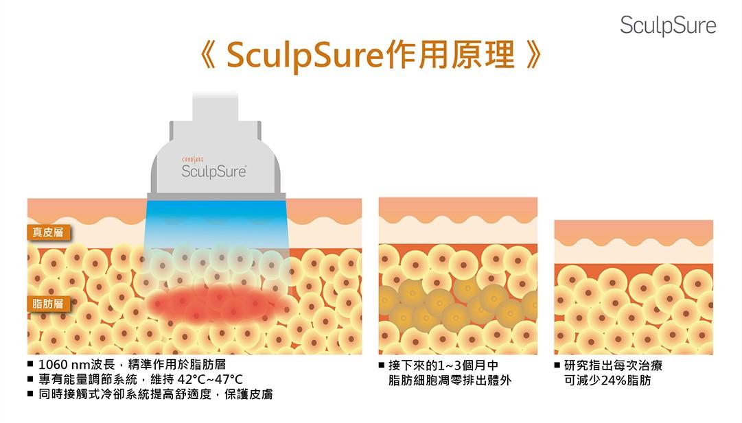 SculpSure絲酷秀作用原理