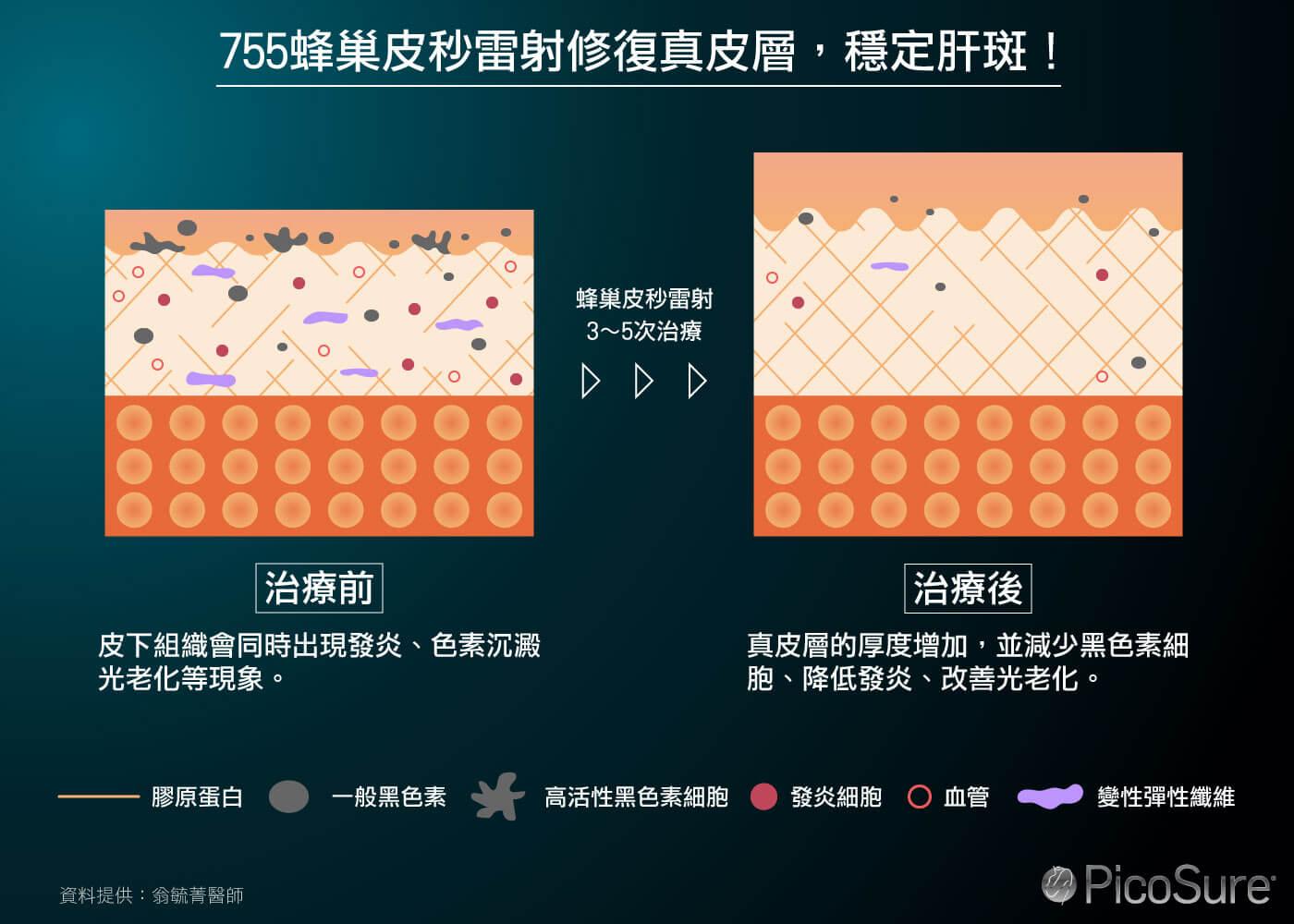 755蜂巢皮秒改善肝斑