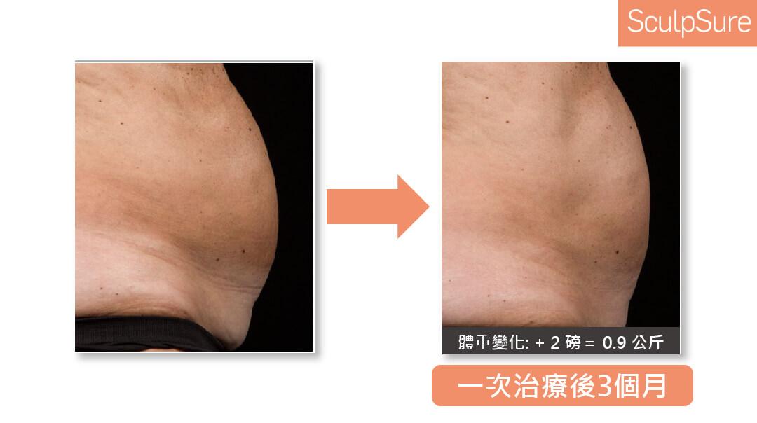 Sculpsure絲酷秀皮秒雷射治療後三個月效果
